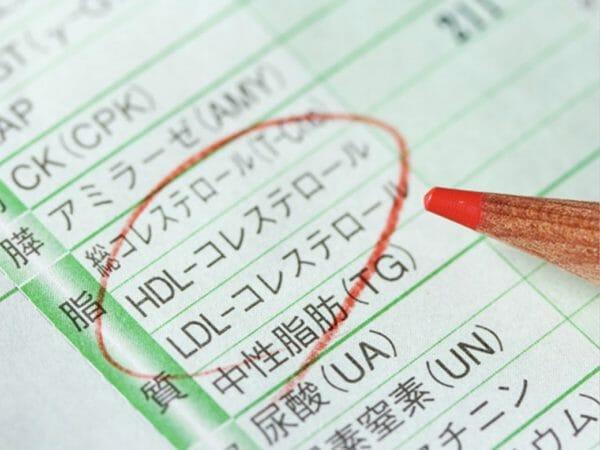 健康診断の血液検査でわかる血糖値のイメージ