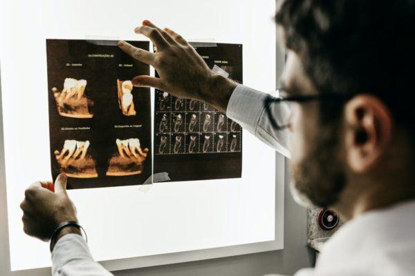 炎症の結果で頭痛が起こっているかを診察する医師のイメージ